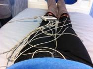 ECG wires